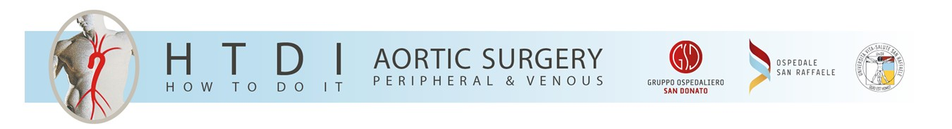 Aortic Surgery and Anesthesia: How to do it