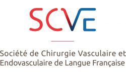 SCVE logo